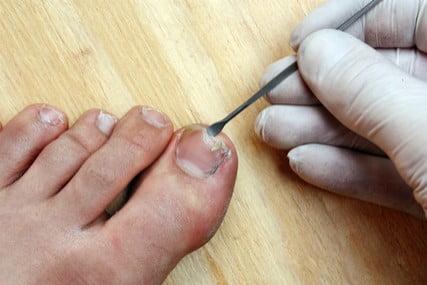 Masalah kuku rapuh, dan berkulat serta kulit kaki kering